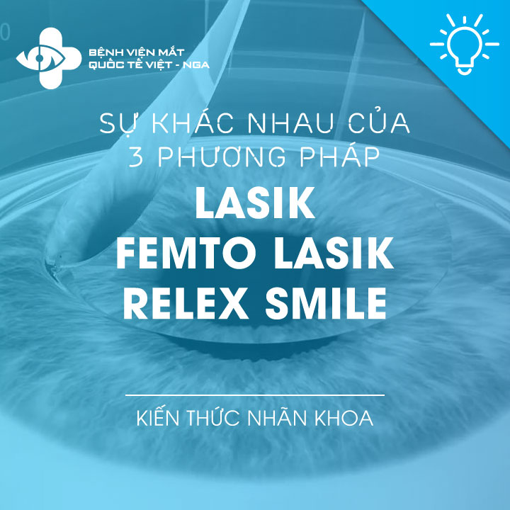 Sự khác nhau của 3 phương pháp: SBK LASIK – FEMTO LASIK – RELEX SMILE