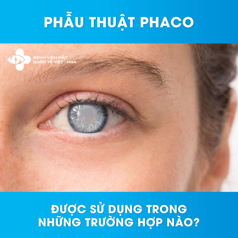 Phẫu thuật Phaco được sử dụng trong những trường hợp nào?