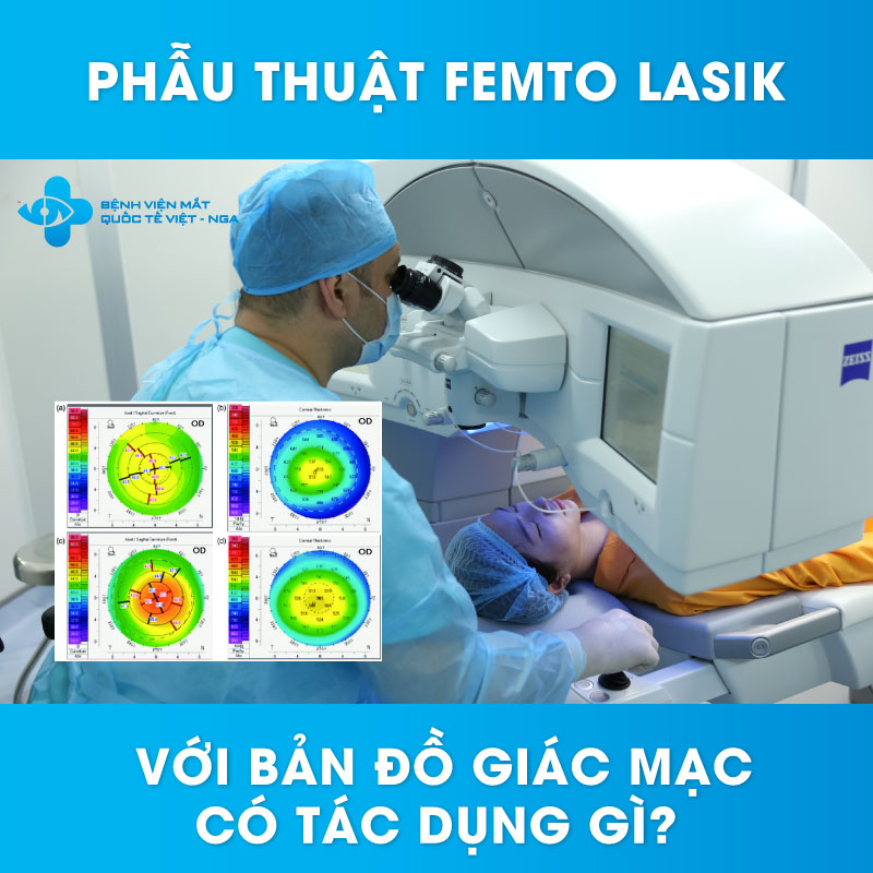 Phẫu thuật Femto Laisk với bản đồ giác mạc có tác dụng gì?