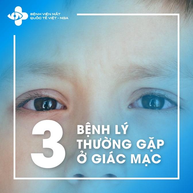 3 bệnh lý thường gặp ở giác mạc
