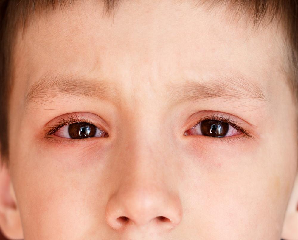 Viêm kết mạc (Đau mắt đỏ, viêm kết mạc mãn tính...)