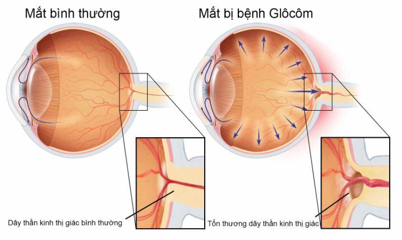 Phương pháp điều trị bệnh glocom