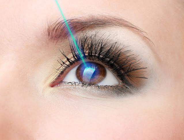Phẫu thuật lasik liên kết bản đồ giác mạc (Topoguide)
