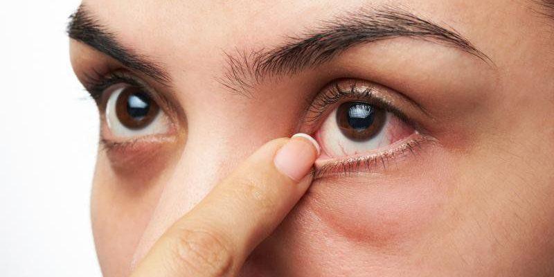 Bệnh mắt hột