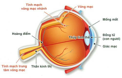 Tắc tĩnh mạch trung tâm VM