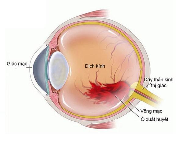 Xuất huyết dịch kính