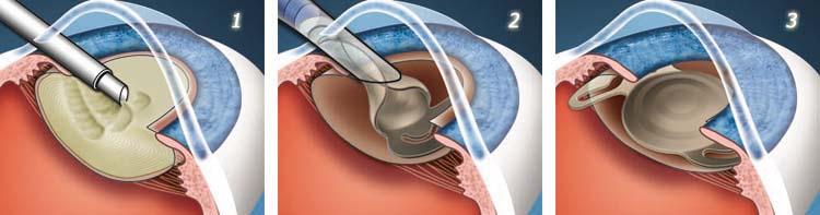 Các loại phẫu thuật điều trị đục thủy tinh thể